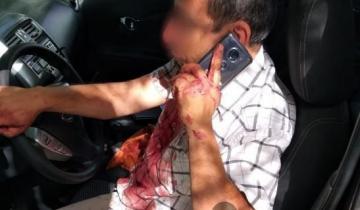 Imagen de Conductor de UBER sufrió una brutal golpiza en Mar del Plata