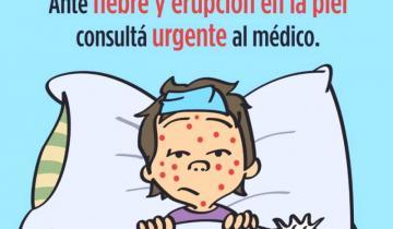 Imagen de Comenzó la campaña de vacunación contra el sarampión en General Lavalle