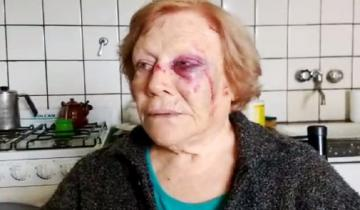 Imagen de Brutal agresión a una jubilada de 84 años en Balcarce: le robaron 20.000 pesos