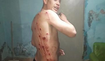 Imagen de Pelea familiar en Balcarce: un joven denunció que la policía le disparó 18 balazos de goma
