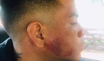 Imagen de Salvaje golpiza a un joven de 21 años en Pinamar