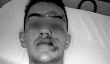 Imagen de Brutal robo y agresión a un joven en plena calle en la ciudad de Las Flores