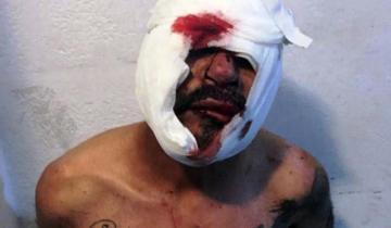 Imagen de Un grupo de vecinos linchó y detuvo a un hombre acusado de violar a un nene de 3 años