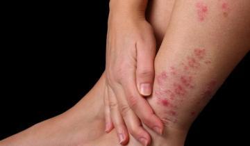 Imagen de Día Mundial de la Psoriasis: cómo reconocer la enfermedad