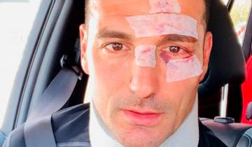 Imagen de Lionel Scaloni sufrió un accidente vial pero comunicó que está bien