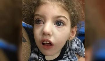 Imagen de Piden ayuda para Isabella, una nena de 4 años que necesita urgente un tratamiento neurológico